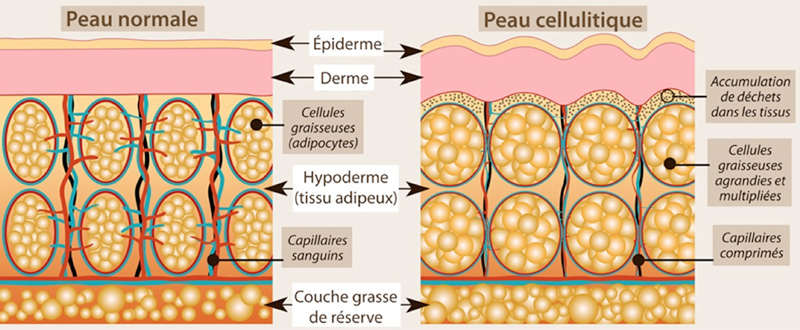 Mécanisme cellulite